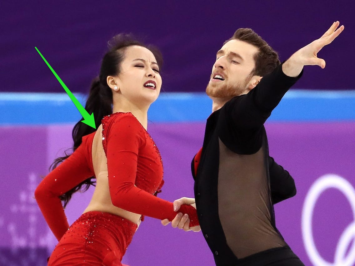 Ice Skater Wardrobe Malfunction Pictures photo 9